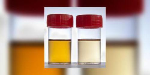 bruleur de graisse urine