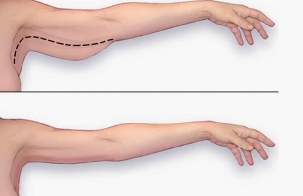 comment maigrir bras