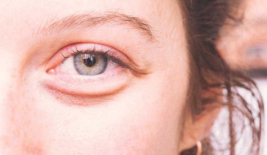comment maigrir des yeux