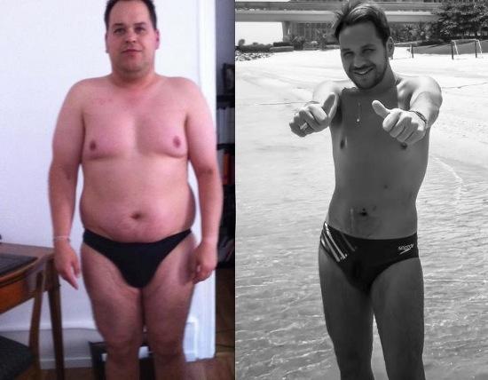perdre du poids avant une sleeve
